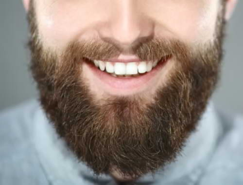 BEARD Hair transpant in Turkey