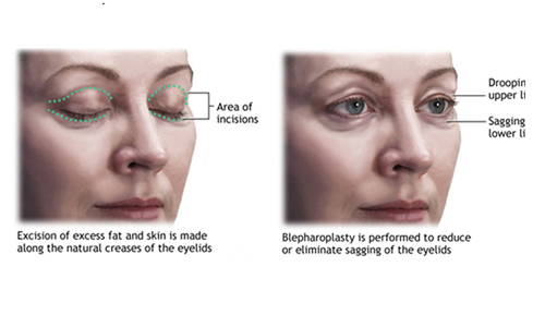 Eyelid Surgery | Blepharoplasty