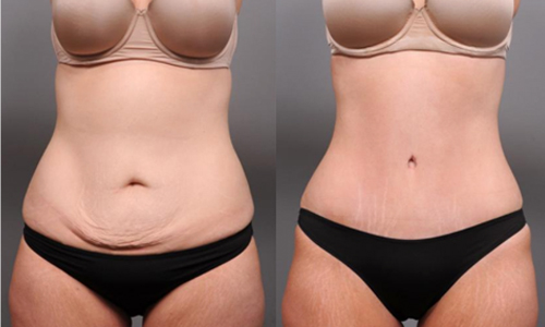 tummy tuck (abdominoplasty) procedure