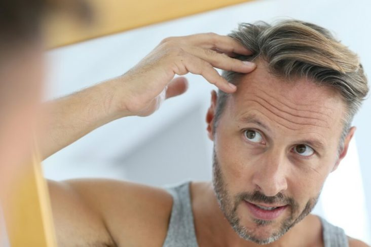 Need to Know Before Getting Hair Transplants