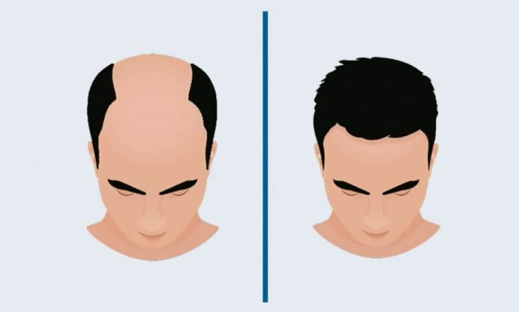 FUE and DHI Hair Transplantation Methods