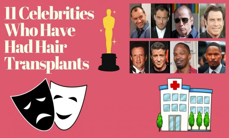 Celebrities Hair Transplantation