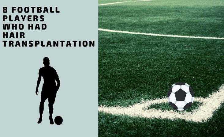 Footballer Hair Transplantation