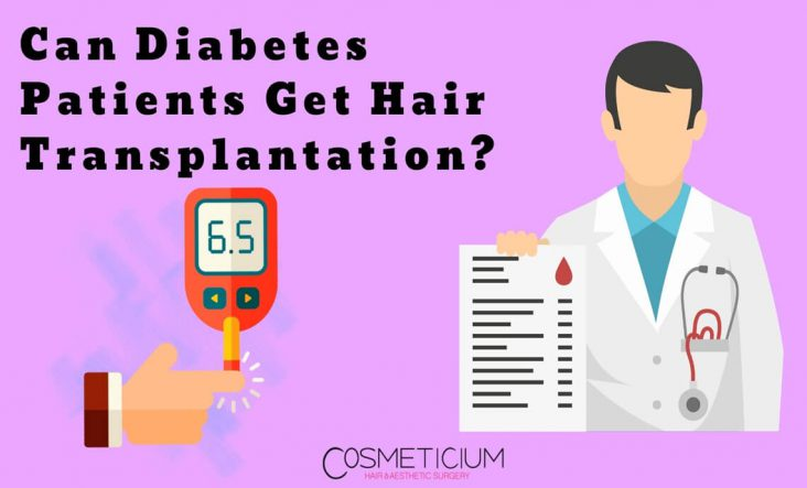 Which Diabetes Patients Can Get Hair Transplantation?