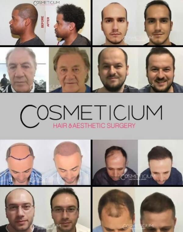 before and after hair transplant photos cosmeticium