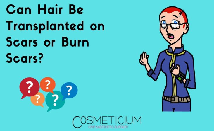 Hair Transplantation on Scars
