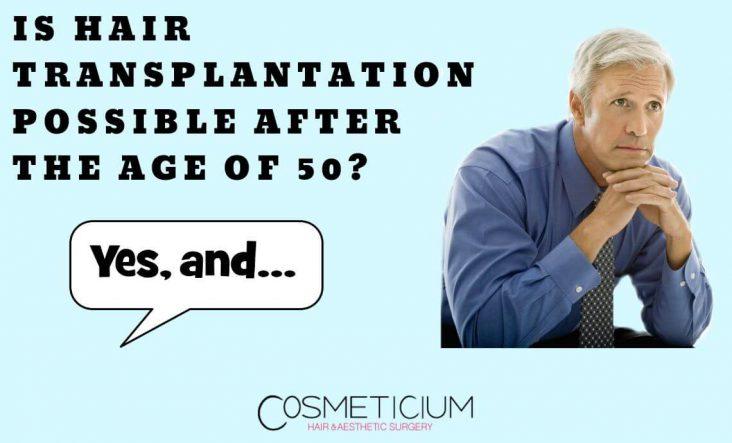 Hair Transplantation in The 50s