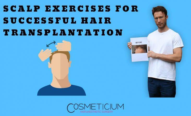 Scalp Exercises for Better Hair Transplant