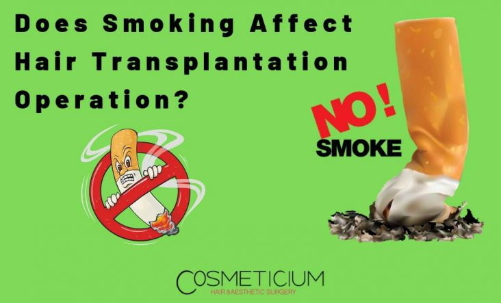 Smoking and Hair Transplantation