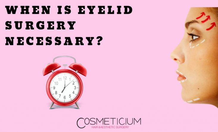 When do you need eyelid surgery?