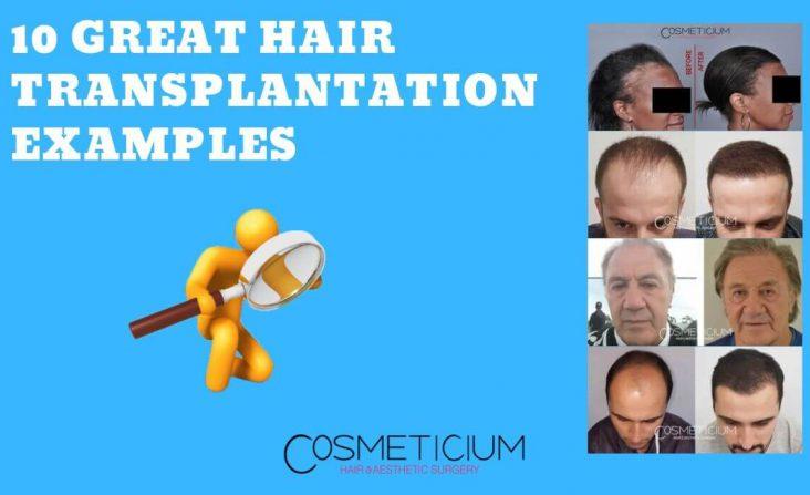 Successful Hair Transplantation Examples