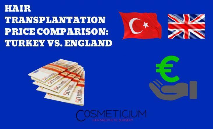 Hair Transplant in Turkey or England