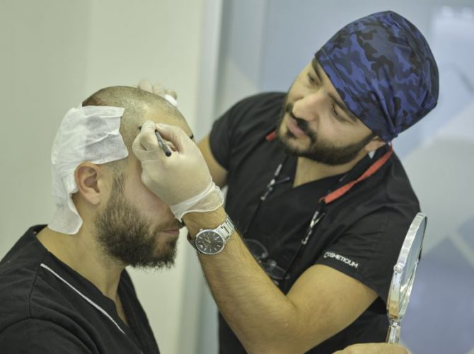 Cosmeticium Hair Transplant Operation 7