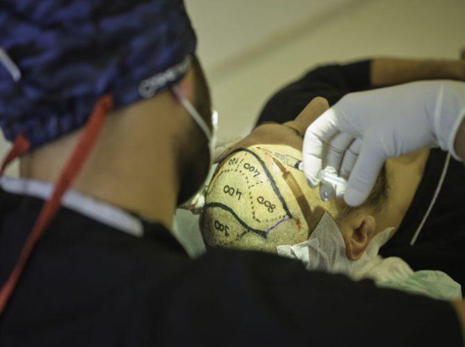 Cosmeticium Hair Transplant Operation 4