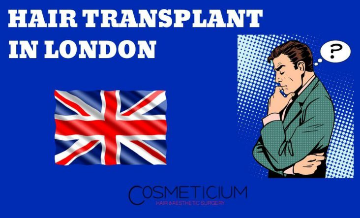 Hair Transplantation in London, England