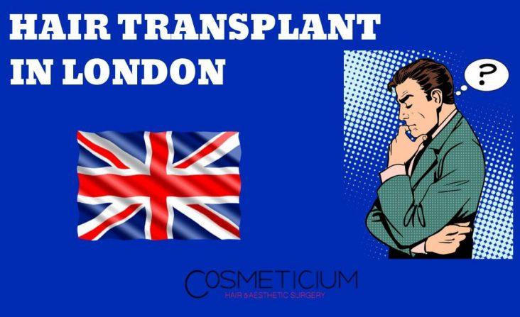 Hair Transplantation in London, England