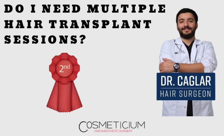 Multiple Hair Transplantation