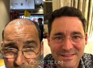 hair transplant before after in turkey