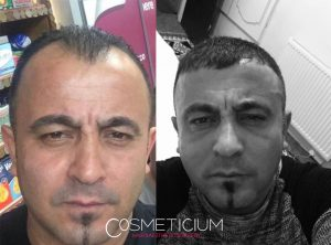 hair transplant before and after at cosmeticium