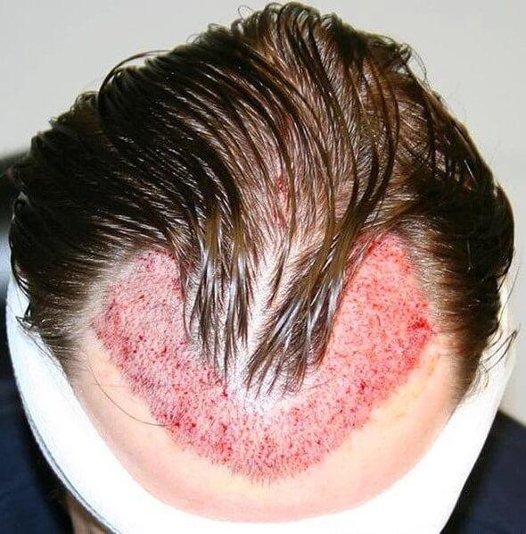 unsuccessful hair transplant