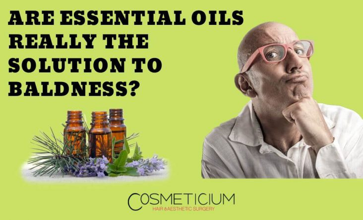 Essential Oils and Hair Loss