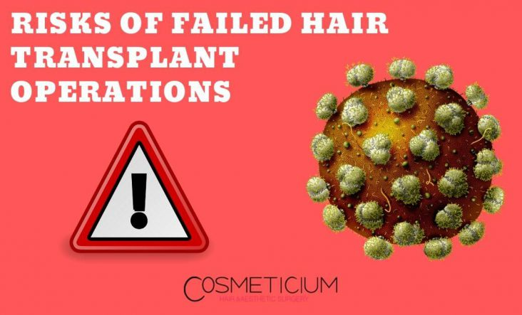 Failed Hair Transplant Results
