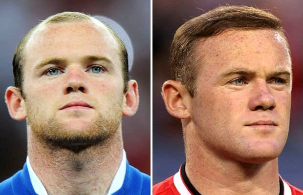 Wayne-Rooney-Hair-Transplant-before-and-after
