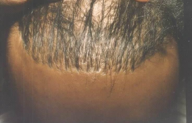 Fail Hair Transplant