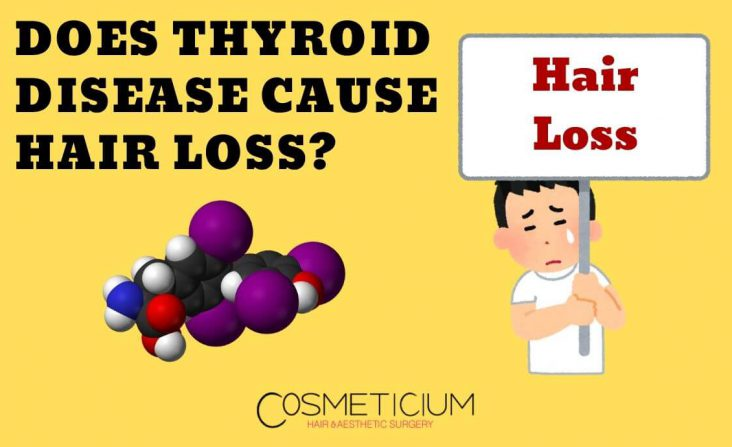 Thyroid Effects for Hair Loss