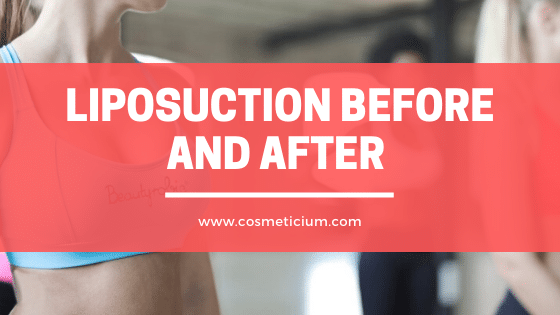 LiposuctionBefore and After