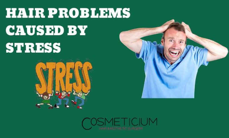 Stress Caused Hair Loss