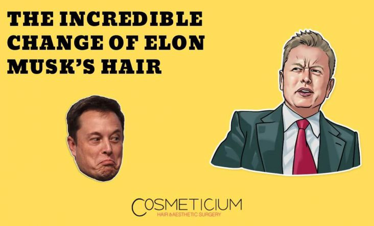 Elon Musk's Hair Before and After Photos