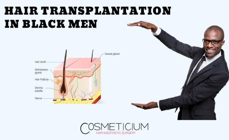 Hair Transplantation for Black Males