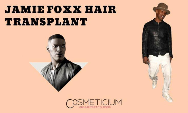 Did Jamie Foxx Really Have Hair Transplantation?