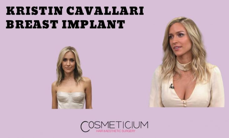 Kristin Cavallari Breast Implant