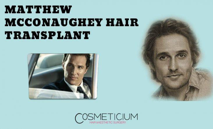 Has Matthew McConaughey Had Hair Transplantation?