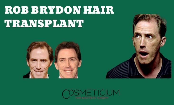 Which Technique Was Used in Rob Brydon's Hair Transplantation?