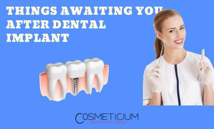 Do I Have Pain after Dental Implant Treatment?