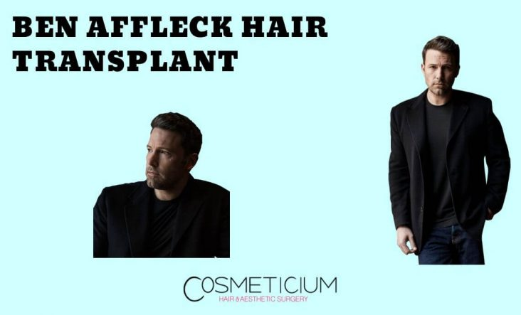 Know Everything about Ben Affleck Hair Secret
