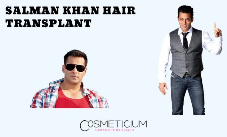 Salman Khan Hair Transplantation