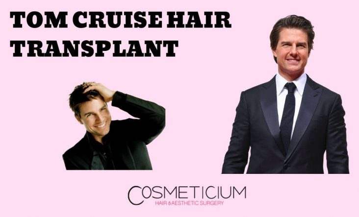 Tom Cruise Hair Transplant