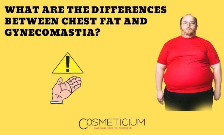 Chest Fat Vs. Gynecomastia