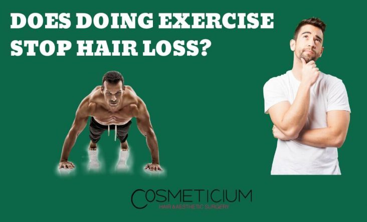Exercise and Hair Loss