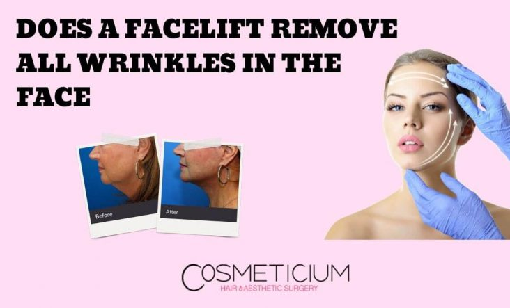 Facelift can Remove All Wrinkles