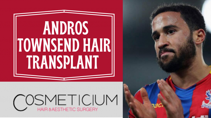 _Andros Townsend Hair Transplant (1)