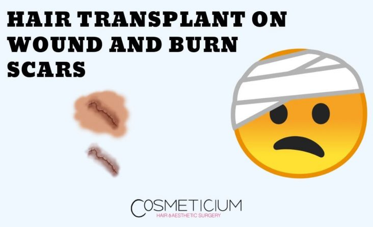 Hair Transplant on Wound and Burn Scars