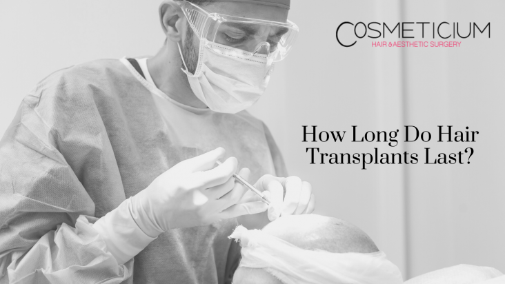 How Long Do Hair Transplants Last_