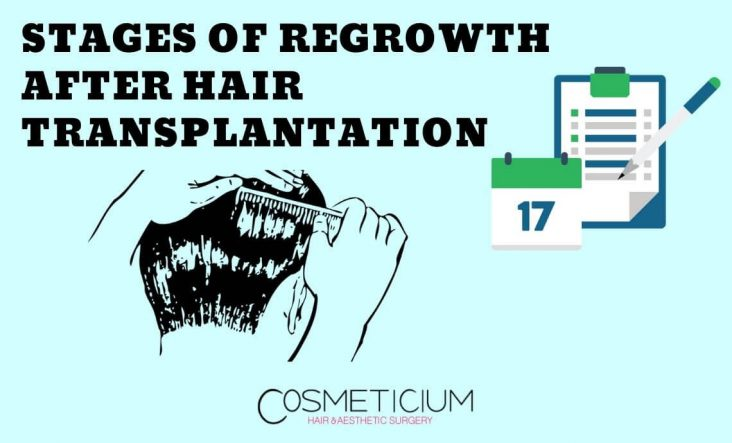 Regrowth Process After Hair Transplant