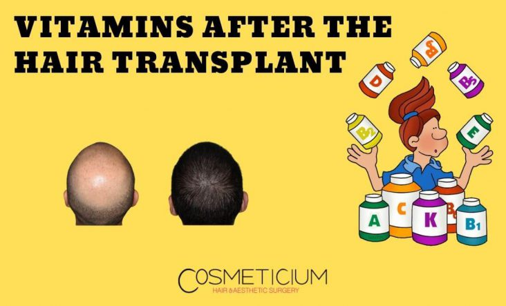 Vitamins After the Hair Transplantation