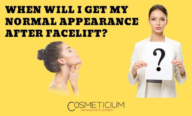 Facelift Recovery Period